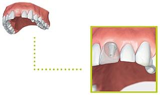 implant05b