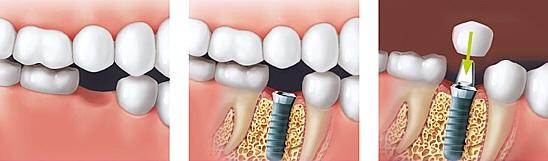 implant02c