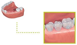implant05e