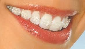 ortodoncja01
