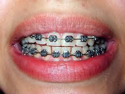 ortodoncja06